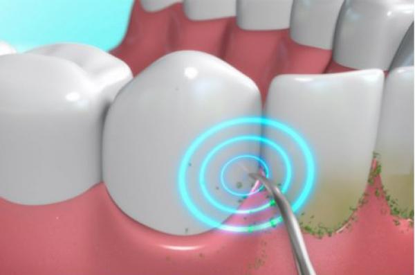 DentaPic Sonic Family Set 24tlg. strahlend weisse Zähne