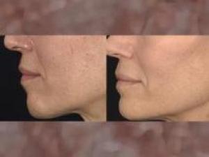 Derma Wand Sauerstoff Gesichtspflegesystem