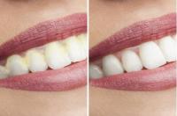 DentaPic Sonic strahlend weisse Zähne 1+1 gratis
